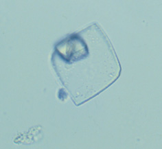 کریستال اسید اوریک