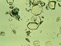 کریستال سیتئین
