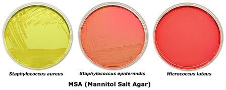 کلنی های باکتری ها در محیط مانیتول سالت آگار msa